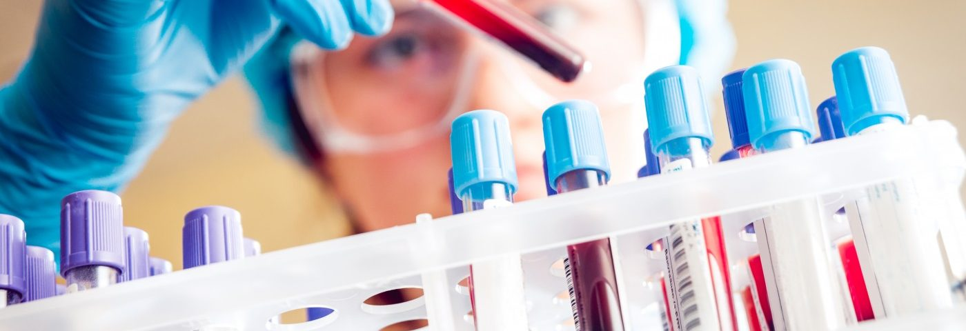 Advanced Blood Sample Analysis Could Be Better Than Bone Marrow Biopsies, Study Shows