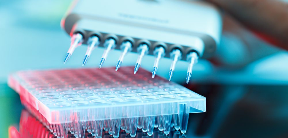 Combining Simple Blood Tests Might Accelerate Diagnosis of Myeloma