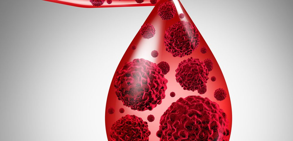 Patients with MGUS Have a Low But Persistent Risk of Multiple Myeloma, Study Finds