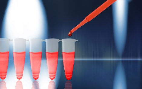 Measuring Blood Vessel Activity May Predict Multiple Myeloma Prognosis