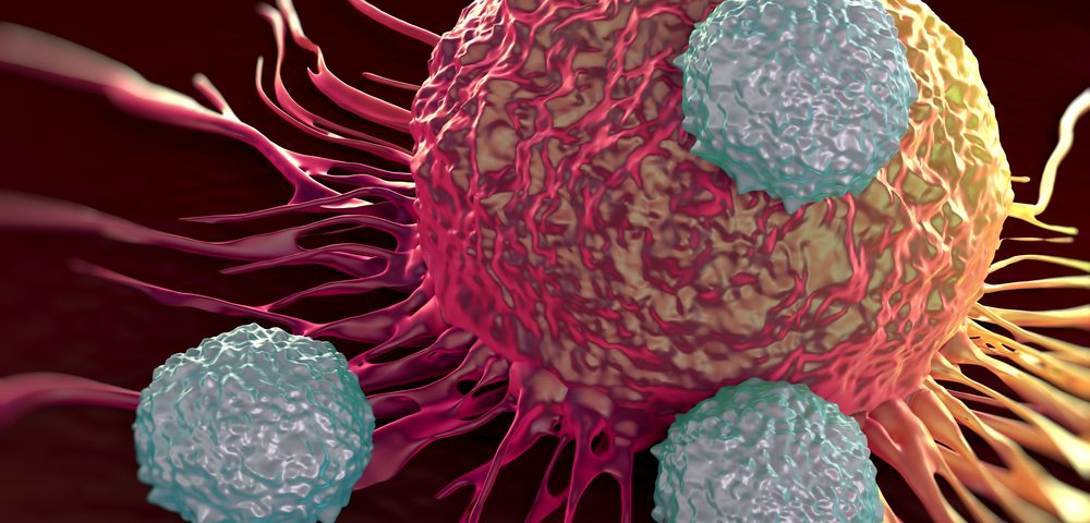 Some with Smoldering Multiple Myeloma May Benefit from Immediate Treatment, Study Suggests