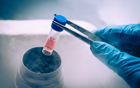AbbVie, IMF Team Up to Study Gene Mutation in Myeloma Outcomes